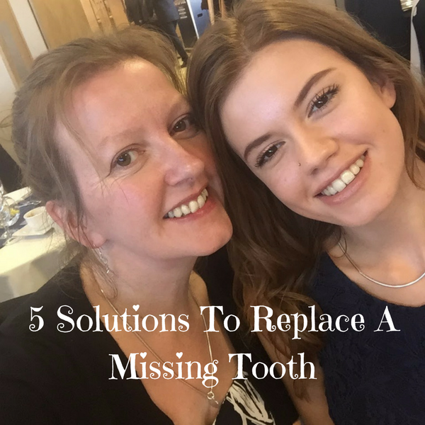 5 Solutions To Replace A Missing Tooth