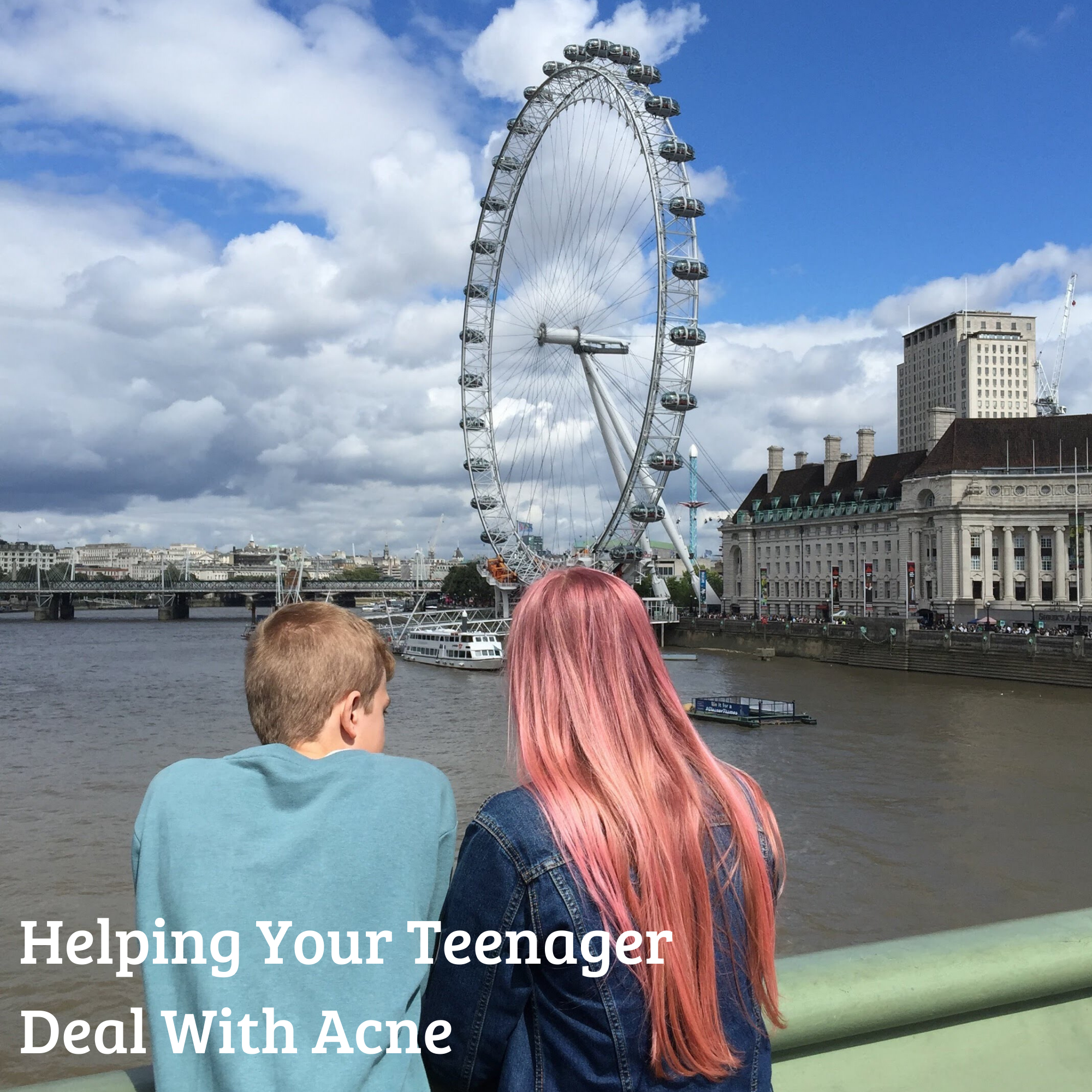 Helping Your Teenager Deal With Acne